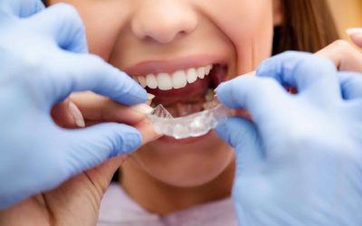 5 Benefits of Invisalign