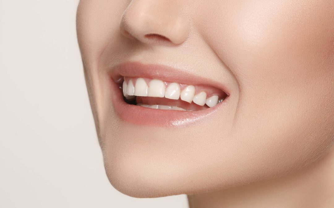 What are The Different Types of Cosmetic Dentistry?