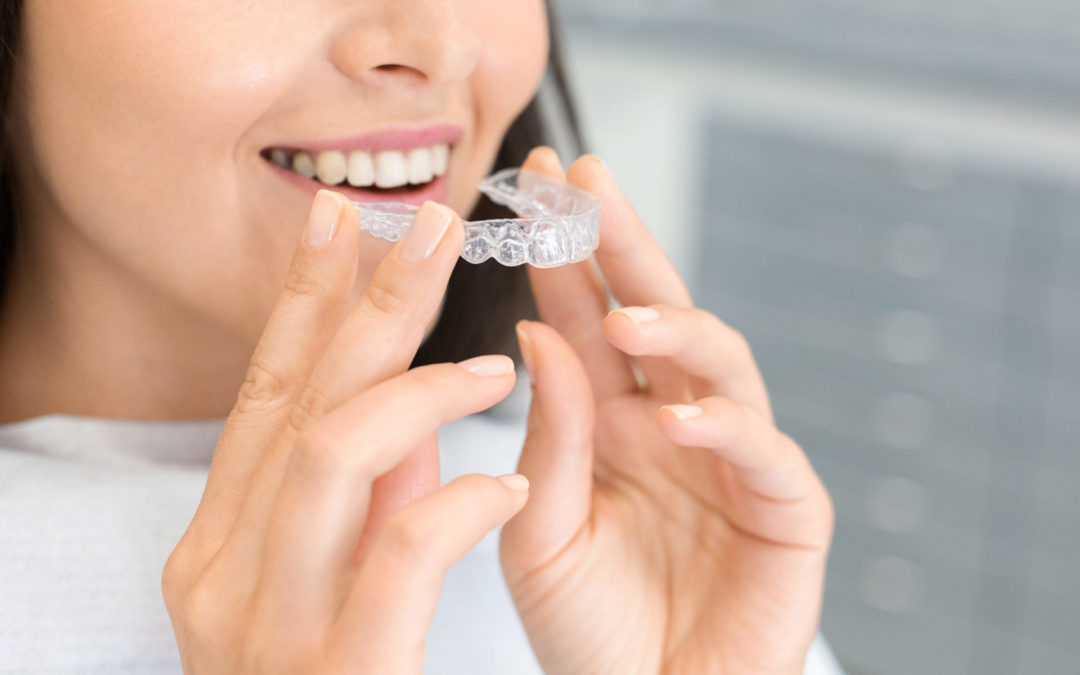 Why Choose Invisalign?